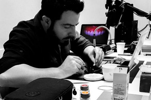 Um Show de Estética em suas Cerâmicas com o TPD Léo Bocabella