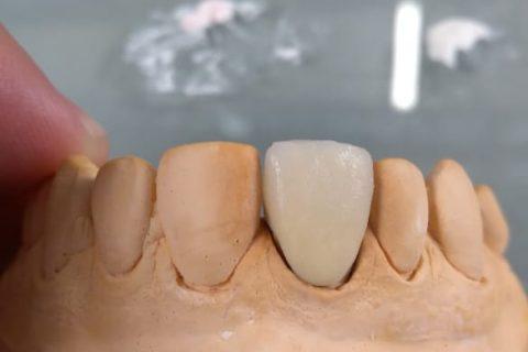 Curso de Metalocerâmica em parceria com a JV Dental